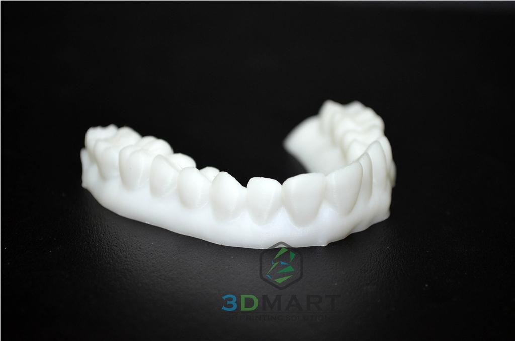 3D列印,牙齒,齒模,HIPS, ULTIMAKER2